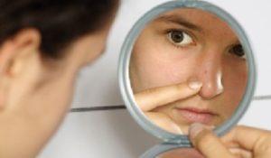 acne-problema-comun